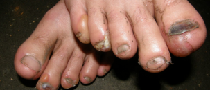 Hamburger Feet – the Sinister 7 ultramarathon